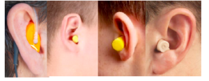 Hearing Protection Device